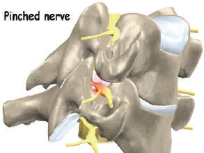 Pinched Nerve in Epidural Space