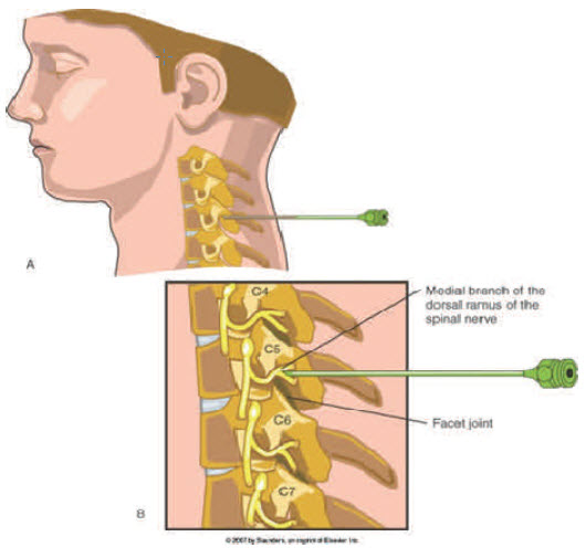 Neck pain from cervical facet joint